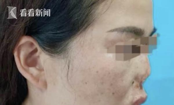 """女子鼻子被老鼠咬掉 30年后终于""""长""""出新鼻子"""